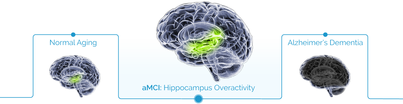 stages of brain neurodegeneration with hippocampus oevractivity